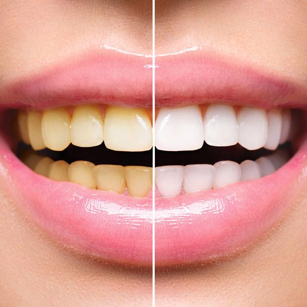 Discoloured Teeth & Fillings