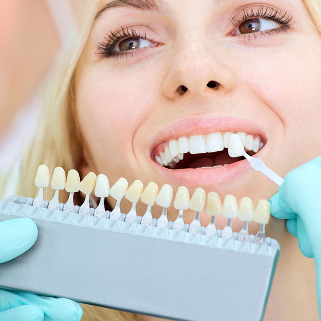 Composite & Porcelain Veneers