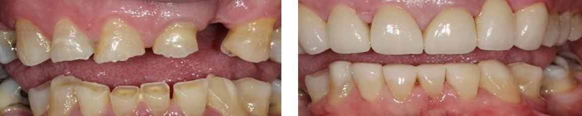 Actual Cases By Dr Ken Teoh and Dr Lisa Guo At EPSOM Dental