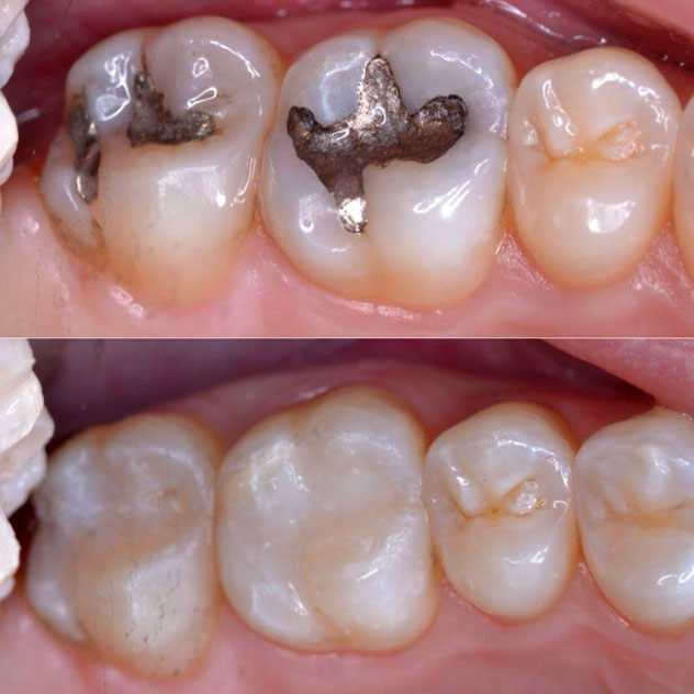 Composite Resin (White) Fillings
