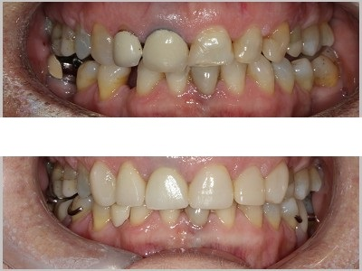 Combination of Ceramic Crowns and Composite Veneers on 6 upper front teeth to replace old unsatisfactory crowns, remove stains, strengthen teeth, and improve shape and colour.