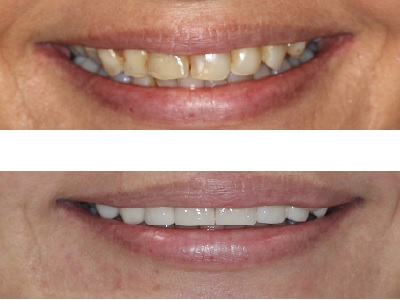 Porcelain Veneers on 8 upper front teeth to remove stains, strengthen teeth, and improve shape and colour.