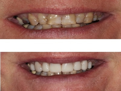 Composite Veneers on 8 upper front teeth to replace old discoloured fillings, restore wear, and improve shape and colour.