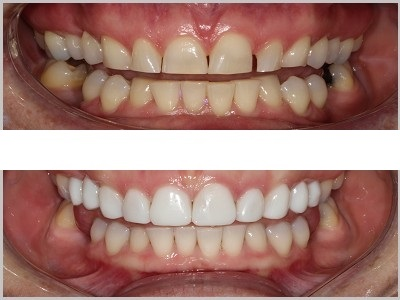 Composite Veneers on 10 upper front teeth to restore wear, close gaps, and improve shape and colour.