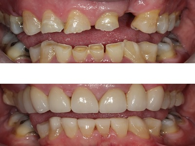 Combination of Ceramic Crowns, a Ceramic Bridge and Composite Buildups on all teeth to restore severe wear, replace missing teeth, and improve shape and colour.
