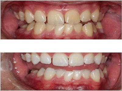 Simple take-home Teeth Whitening over 7 days.